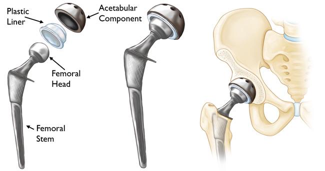 Medgadget Artificial Hip Joint Market Development