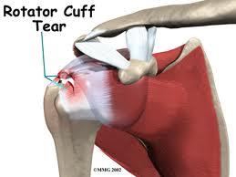 rotator cuff tears treatment in delhi