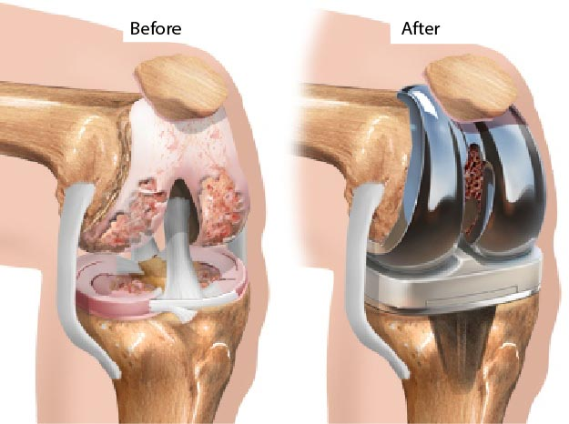 knee replacement before and after pictures